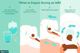 magnetic resonance imaging mri uses