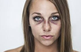 how to make a bruise with makeup you