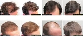 MAN POWER HAIR FUNCIONA MESMO? VEJA ISSO ANTES DE COMPRAR! | Putzz ...