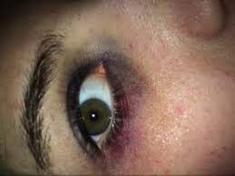 black eye with makeup