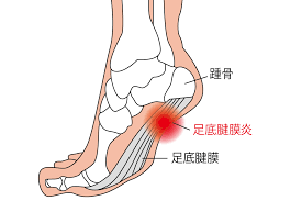 足底筋膜炎とは。チェック方法、原因、治し方、改善トレーニングを紹介 | TENTIAL[テンシャル] 公式オンラインストア
