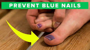 how to prevent blue toe nails learn