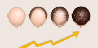 hair grow after hair transplant