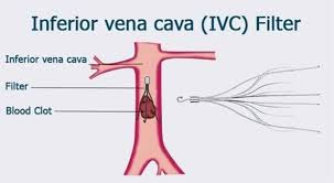 Image result for ivc filters