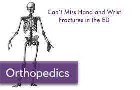orthopedics nuem
