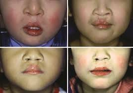 bilateral cleft lip cleft palate