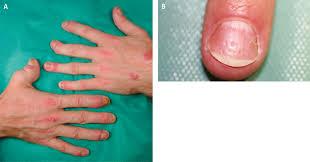 figure 031 0769 psoriatic arthritis a