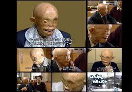 یکی از قربانیان بمب اتمی آمریکا + عکس - Gerdab.IR | گرداب