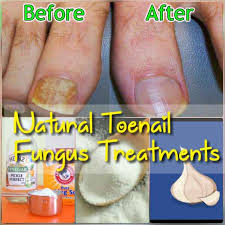 top 5 effective nail fungus natural