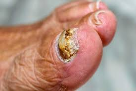 natural ways to deal with nail fungus