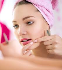 creams to treat pimples