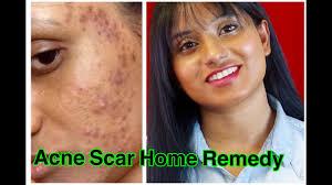 get rid of acne scar fast clear skin