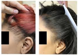 traction alopecia in black women is