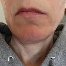 complications of jaw surgery nova