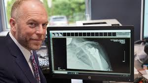 3 orthopedics providers expand walk in
