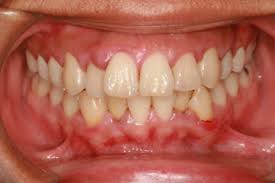 is there a home remedy for swollen gums