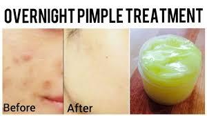 homemade pimple cream acne scar