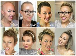 from bald to beautiful tresses the