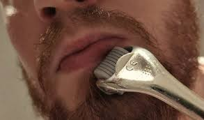 is dermaroller good for beard growth