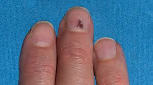 blood under my nail or is it melanoma