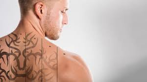 laser tattoo removal charlotte nc