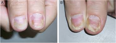 full text nail psoriasis clinical