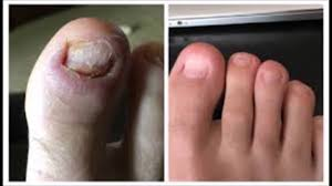 use coconut oil for toenail fungus