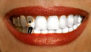 """Картинки по запросу """"Відбілити зуби"""""""