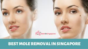 mole removal in singapore