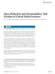 intramedullary nail fixation of closed