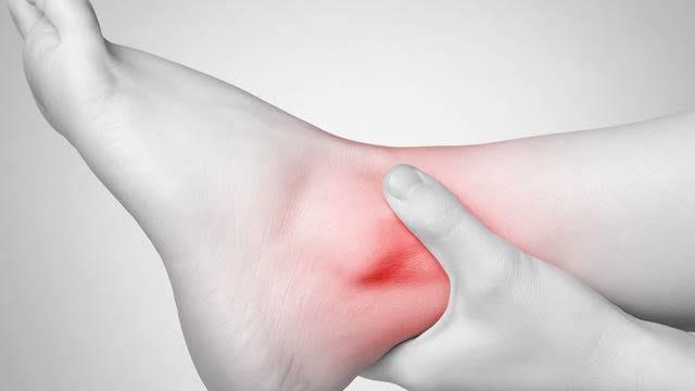 """bacak ve ayak bileğinde şişme ile ilgili görsel sonucu"""""""