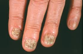 causes and treatments of nail fungus