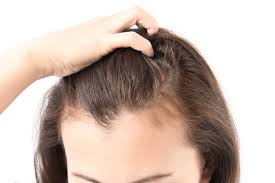 scalp psoriasis worse mane addicts