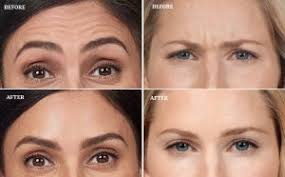 botox toxin and treatment mommy heart