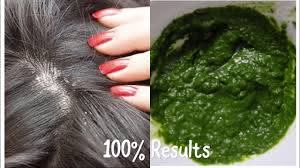 seborrheic dermais scalp treatment