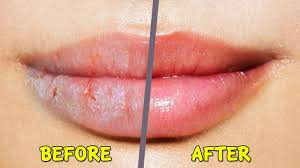 dry ed chapped lips in winter