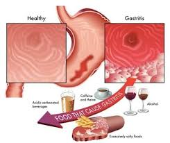 gastritis symptoms and treatment