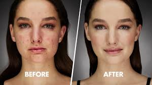 cover acne 101 by make up for ever