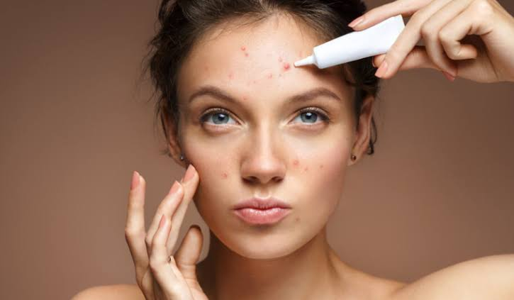"""Image result for face pimples"""",nari"""