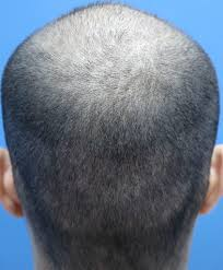 protokol transplantasi rambut hair
