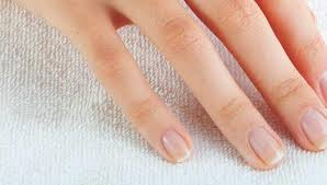 white spots on the nails causeore