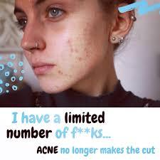 no makeup challenge acne saubhaya makeup