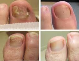 toenail fungus gulf south foot