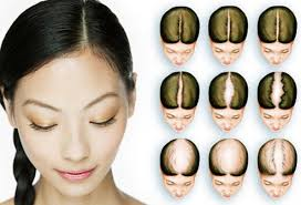 women s hair loss causes treatments