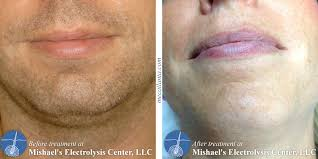 after electrolysis hair removal