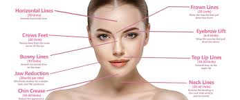 botox cosmetic frown lines crow s