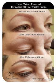 permanent makeup tattoo removal cream