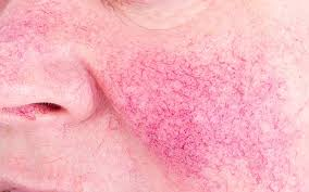 rosacea makeup tricks that clear skin