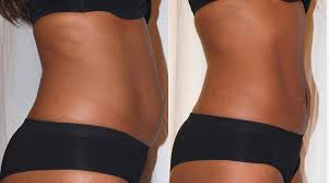 non surgical laser lipo fat reduction
