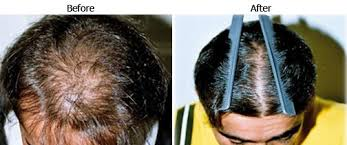 best hair regrowth treatment in india
